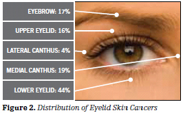 figure2_eyelidcancer